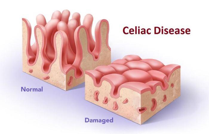 La celiaquía y el estado de la microbiota intestinal